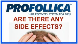 does profollica have side effects?